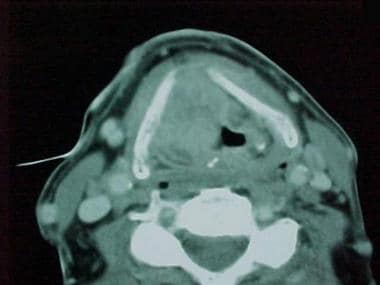 Erosion of the thyroid cartilage by the tumor seen