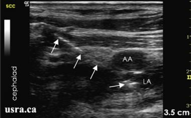 Ultrasound image of the needle in plane with local