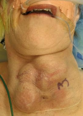 Photograph showing a goiter as an extensive neck m