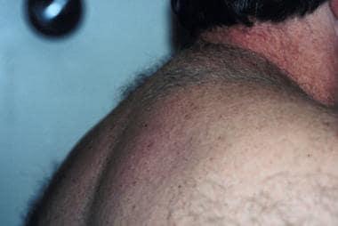 escleredema de la diabetes de Buschke emedicina