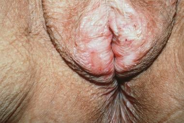 More advanced vulvar lichen sclerosus; eroded area