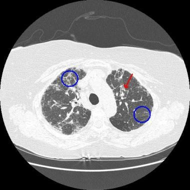 A patient with nonspecific interstitial pneumonia.