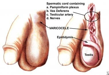 A large varicocele is seen through the scrotal ski