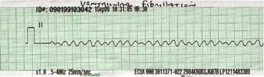 Rhythm strip showing ventricular fibrillation.