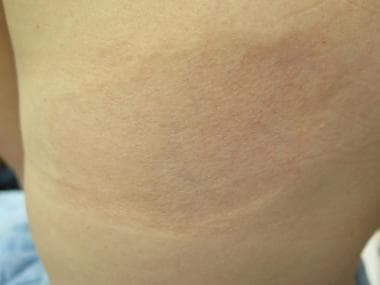 Single ovoid patch of atrophoderma on the back of