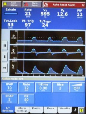 Screen shot of ventilator graphics and information