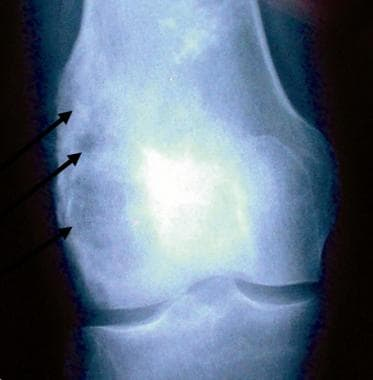 AP radiograph of the knee demonstrating a tumor ar