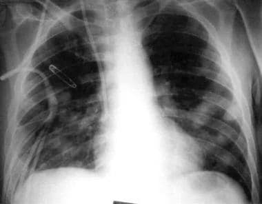 Chest radiograph showing multiple pulmonary nodule