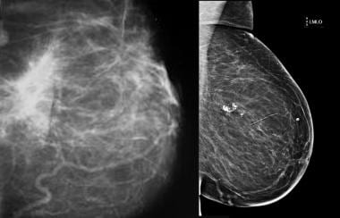 Traumatic fat necrosis. Mammogram shows traumatic