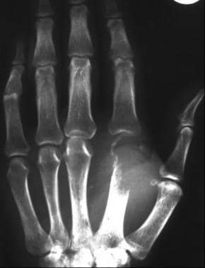 Differential diagnosis of painful fingers: metasta