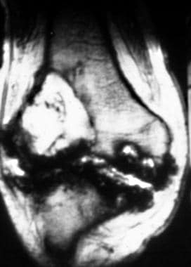 Coronal T2-weighted magnetic resonance image of th