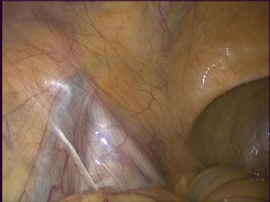 Laparoscopic inguinal hernia repair: TAPP. Normal