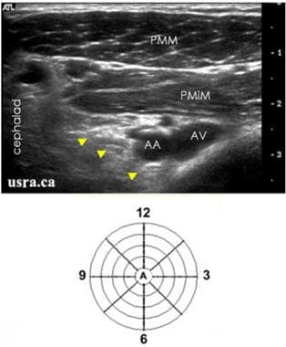 Ultrasound orientation of the muscles, arteries, a
