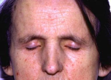 Face of 65-year old woman with systemic sclerosis