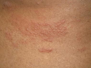 Herpes zoster on lateral part of abdomen.