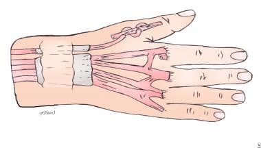 Extensor indicis proprius transfer to the extensor