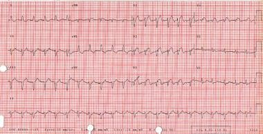 Cardiogenic shock. This electrocardiogram shows ev