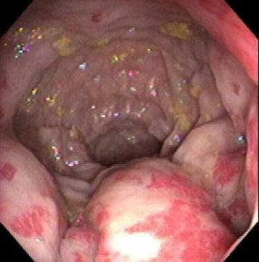 Proctitis seen on flexible endoscopy.