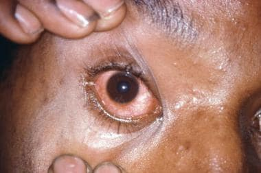 This patient presented with gonococcal urethritis,