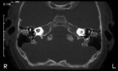 Labyrinthitis ossificans is shown on axial CT scan