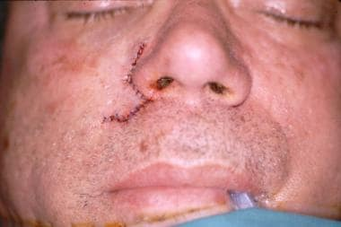Postoperative frontal view of Mohs defect.
