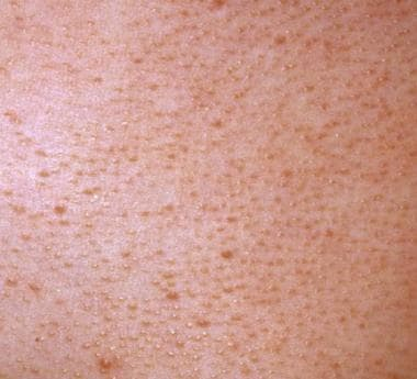The lesions of keratosis pilaris are evenly spaced