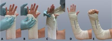 Splint is applied in stages (A, B, C) and shown in