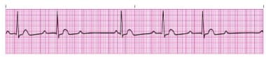 Second-degree Mobitz type I atrioventricular block