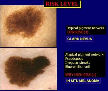A low-risk melanocytic lesion with a typical pigme
