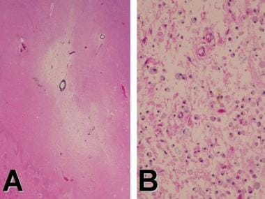 Dementia pathology. A: Hematoxylin-eosin-Luxol fas