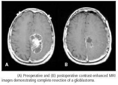 Glioblastoma multiforme (GBM) before and after sur