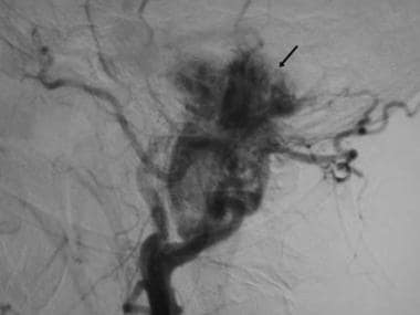 Glomus jugulare. Digital subtraction angiogram sho