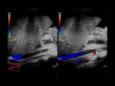 Budd-Chiari syndrome: Two ultrasound images from a