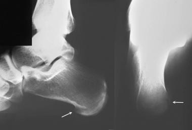 Calcaneus, fractures. Lateral and axial radiograph