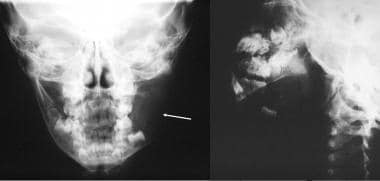 Anteroposterior radiograph of the mandible (left i
