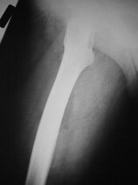 Lateral radiograph of the femur in a 45-year-old m