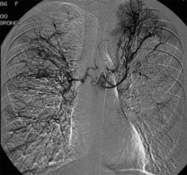Contrast agent injection in the common bronchial a