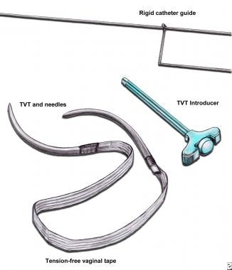 Tension-free vaginal tape (TVT). TVT device comes