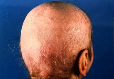 Favus of the scalp shows extensive lesions with sc