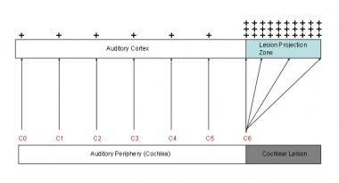 Tinnitus model. Two phenomena in auditory cortex a