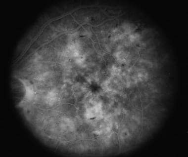 Fluorescein angiogram of same eye as in the image