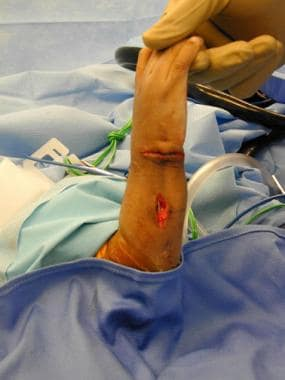 Ulnar incision to centralize carpus and proximal i