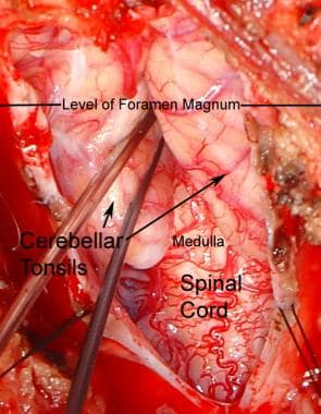 Intraoperative photograph of Chiari type 1 malform