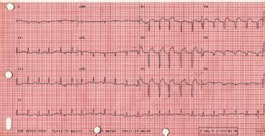 Cardiogenic shock. The electrocardiogram tracing s