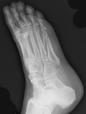 Fractures, foot. Spiral fracture of the shaft of t