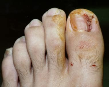Appearance of toenail at end of the cauterizing pr