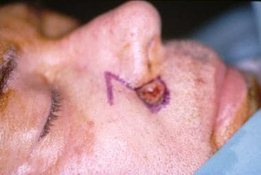 Preoperative lateral view of Mohs defect.