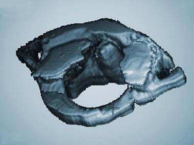 Three-dimensional CT scan of C1.