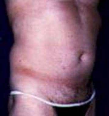 Patient 1 before ultrasonic-assisted liposuction (