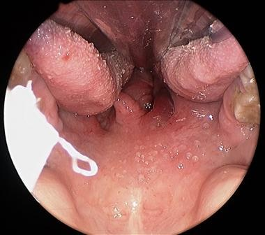 The tumor is noted to arise from the right tonsil